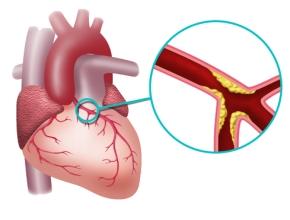 Postępowanie z podopiecznymi z hipercholesterolemią